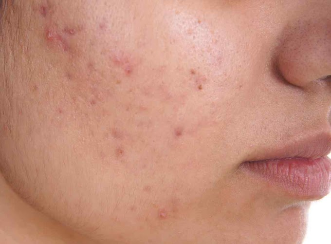 What Is Acne.