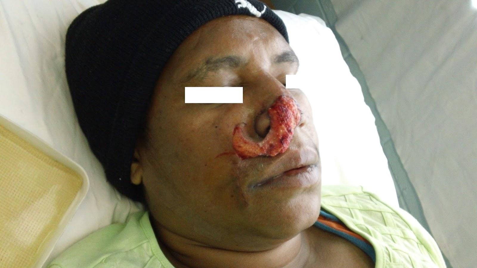 Facial flap surgery — 1