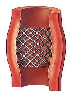 stent