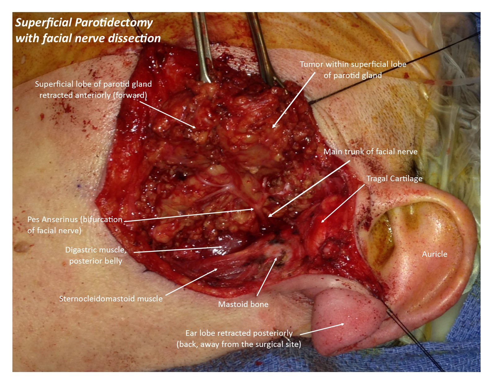 Parotid Surgery: Parotidectomy and Facial Nerve Dissection | Randall ...