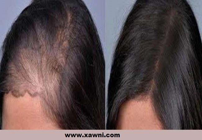 تساقط الشعر التشخيص والعلاج الجزء الأول