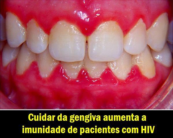 NOTIDENTAL: Cuidar da gengiva aumenta a imunidade de pacientes com HIV