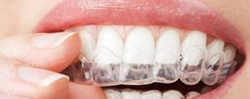 9 things you need to know if you want to wear invisible braces