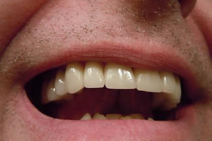Cara Mengobati Sakit Gigi Yang Ampuh
