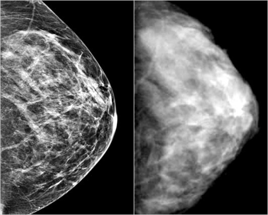 Breast Cancer: Mammograms - Good or Bad?
