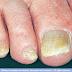 Μύκητες των νυχιών. Θεραπεία με φυσικές μεθόδους