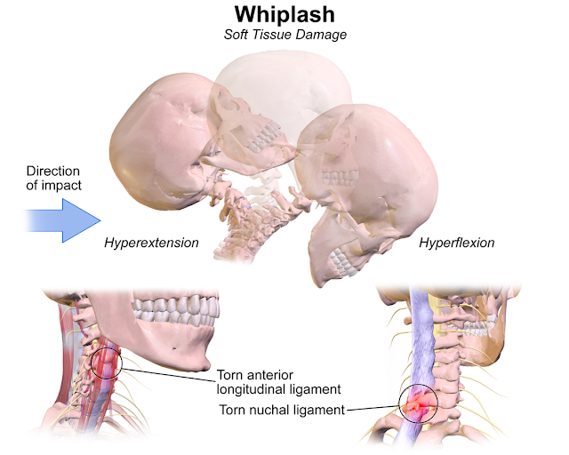 Whiplash Injury (SYN: Acceleration injury, cervical sprain syndrome, soft tissue neck injury) - physioscare.com