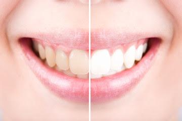How To paint yellow teeth?पीले दांत कैसे चमकाए?