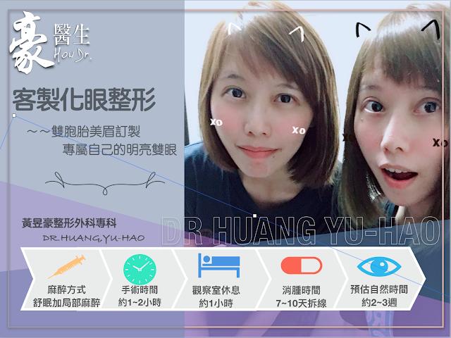 【雙胞胎素人分享】客製化眼整形~就算是雙胞胎,也能打造專屬自己的明亮雙眼