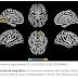 Novo coronavírus infecta o cérebro e pode causar alterações cerebrais mesmo em casos leves