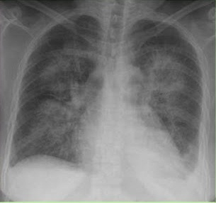 Hipertensive Heart Disease Radiological X-ray Image Thorax AnteroPosterior