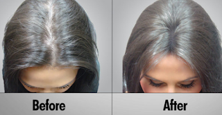 Laser Hair Growth before and after