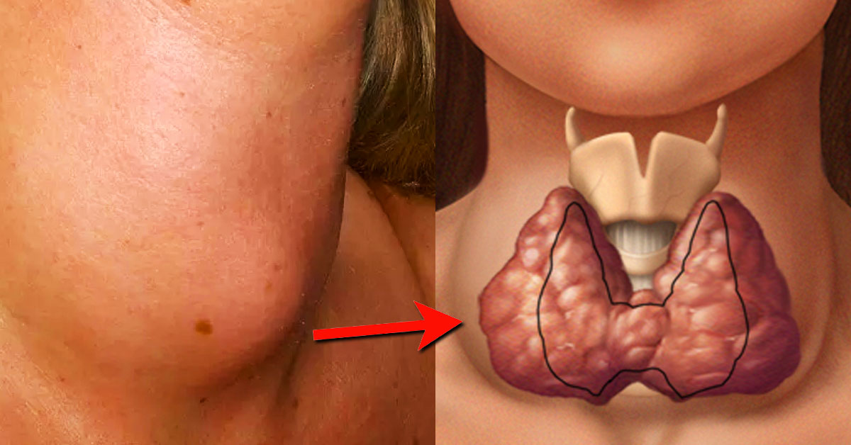 Goiter Causes And Symptoms Healthy Digest