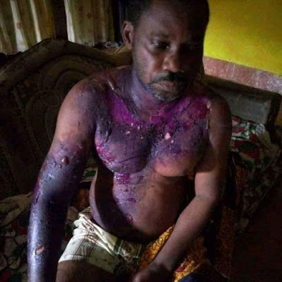 PHOTOS: Wife Pours Hot Water On Husband While Sleeping Over Quarrel