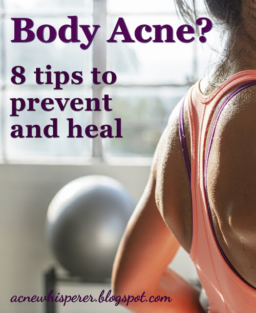 Got Body Acne? Never, EVER go long without showering and changing your clothes after working out!  You will worsen your breakouts if you do. Find out how!