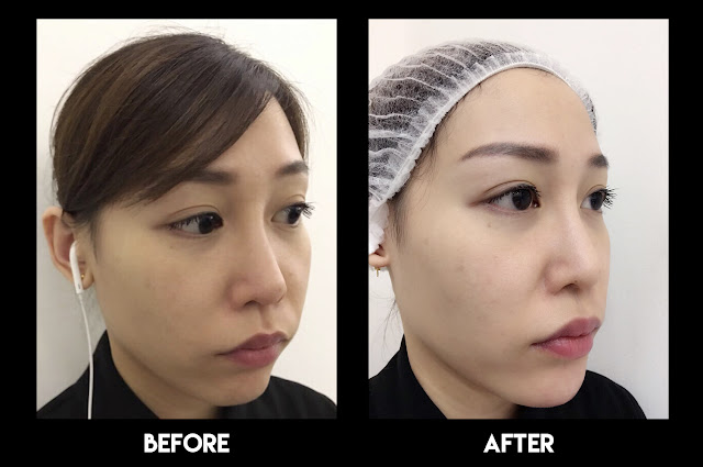 Before and after Non-surgical Chin Augmentation