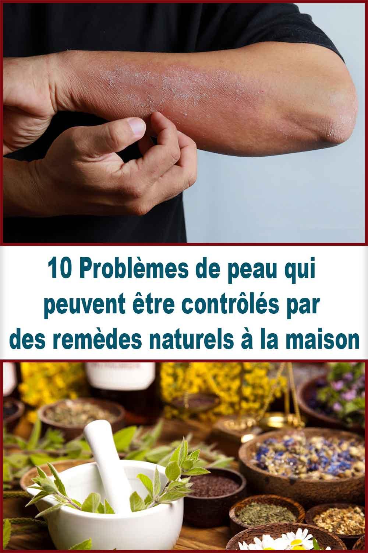 Problèmes de peau qui peuvent être contrôlés par des remèdes naturels à la maison