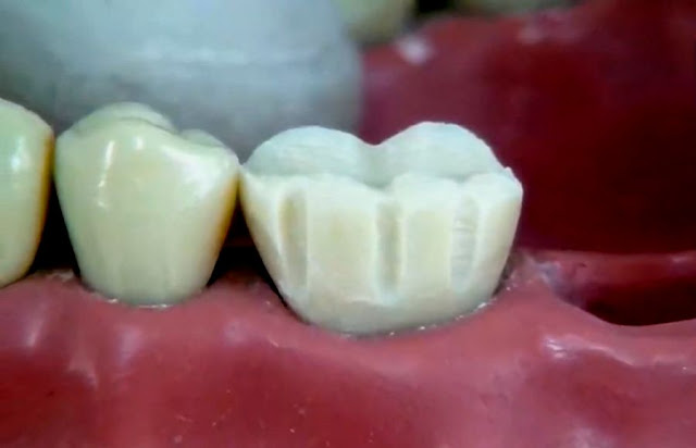 Preparation of a complete molar crown step by step