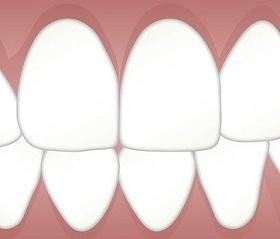 فوائد لبان الذكر للاسنان