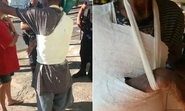 Homem tem braço e tronco engessados por cima de roupa em unidade de saúde
