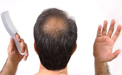 """Cây quen thuộc này là """"thần dược"""" cho chứng hói đầu và rụng tóc!"""