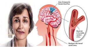 Penting Bagi Kita ! Pahami Gejala Penyakit Stroke