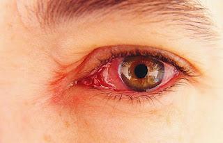 Cara mengatasi mata merah dan gatal