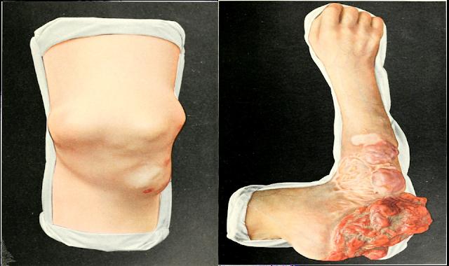 معلومات عن سرطان العظام والأنسجة الرخوة (ساركوما)