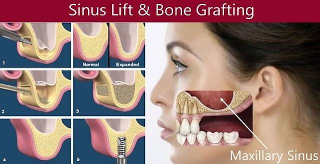 sinus lift surgery dental procedure