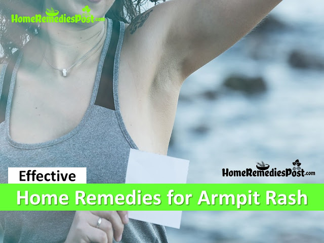 How To Get Rid Of Armpit Rash, Home Remedies For Armpit Rash, Armpit Rash treatment overnight fast, How To Cure Armpit Rash, Relief From Armpit Rash, Armpit Rash Home Remedies, How To Treat Armpit Rash, Armpit Rash Remedies, Remedies For Armpit Rash, Cure Armpit Rash, Treatment For Armpit Rash, Best Armpit Rash Treatment, Armpit Rash Relief, How To Get Relief From Armpit Rash, How To Get Rid Of Armpit Rash Fast,
