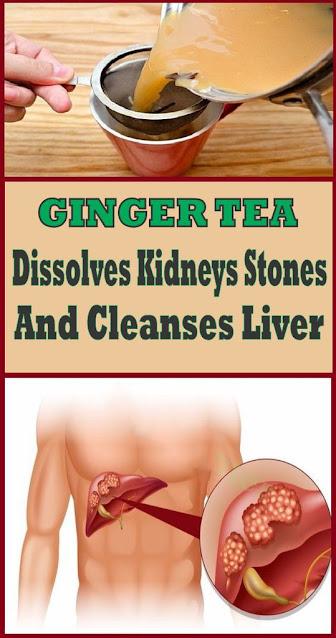 Ginger Tea: Dissolves Kidney Stones, Cleanses Liver & Obliterates Cancer