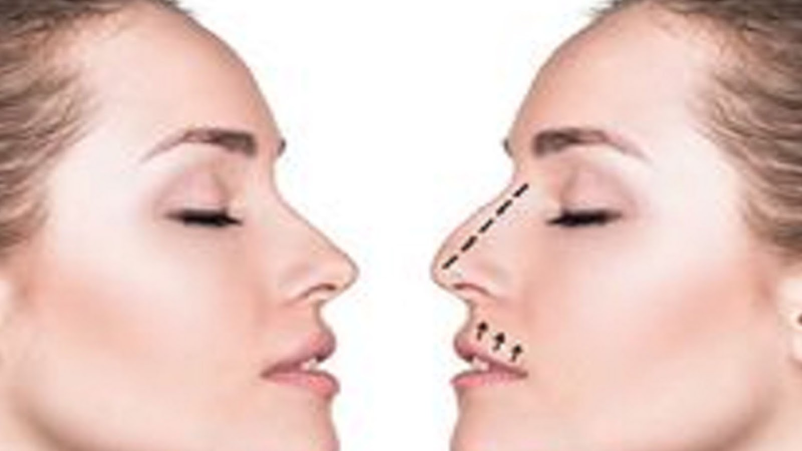 5 Myths About Rhinoplasty Revisited