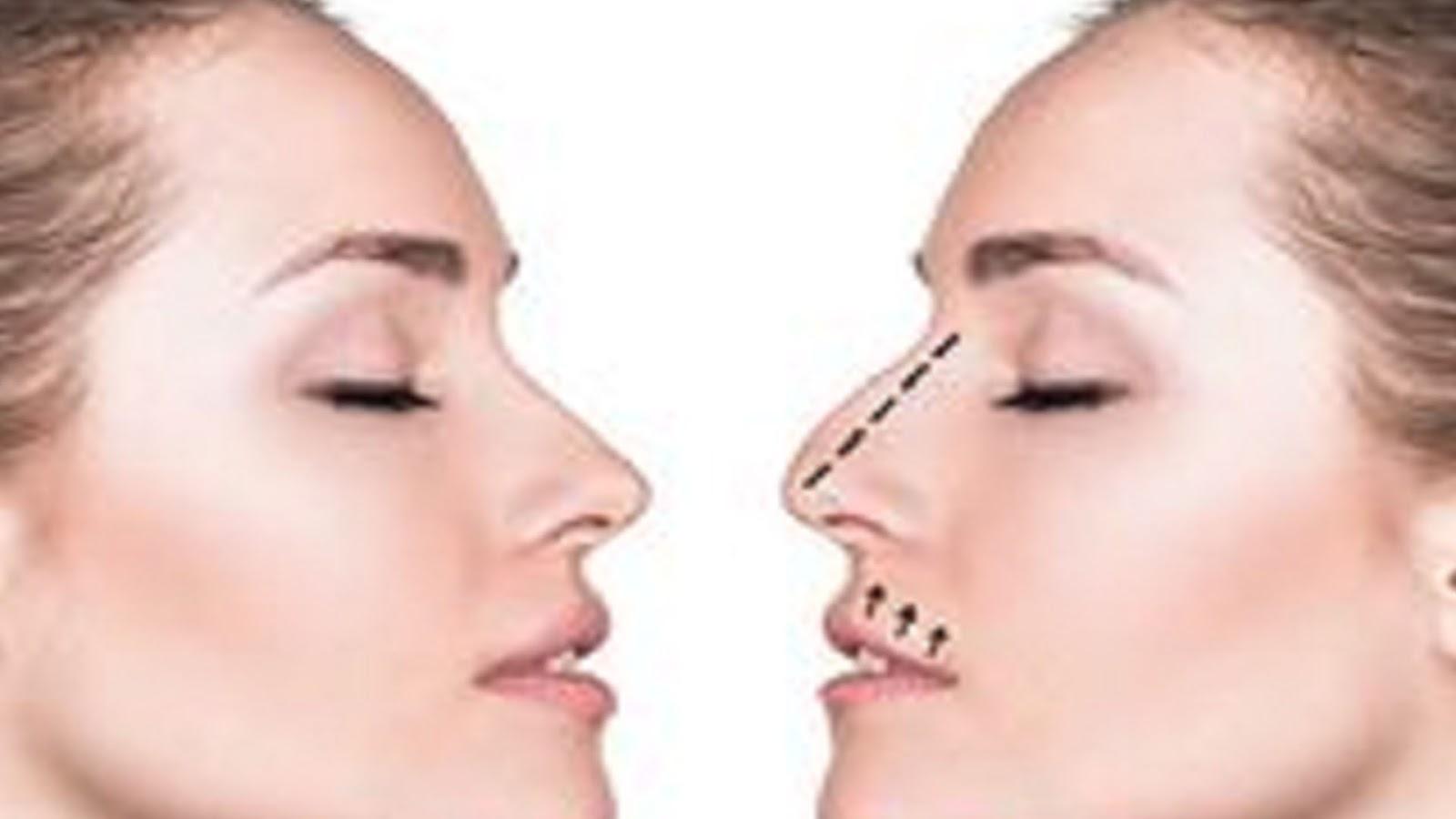 plastic surgery, cosmetic surgery, rhinoplasty, nose job, nose surgery