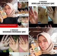 QNC JELLY GAMAT EMAS TERLARIS ORIGINAL (BERGARANSI) ASLI - JAKARTA TIMUR