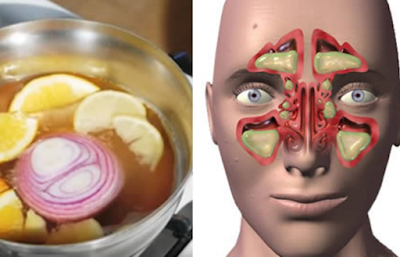 Increíble remedio que elimina la congestión nasal, la sinusitis y la gripe en un día