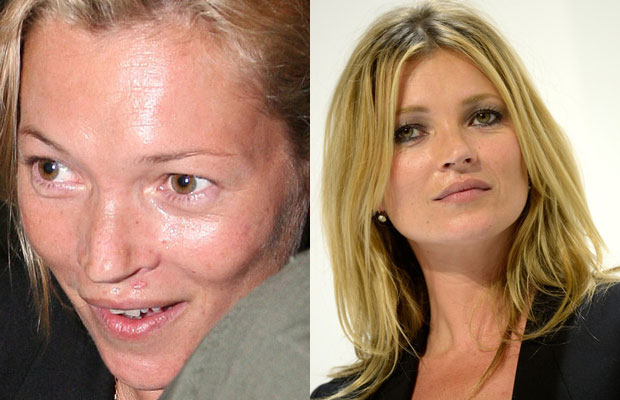 Kate Moss with n without makeup