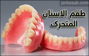 سعر طقم الاسنان المتحرك في الرياض