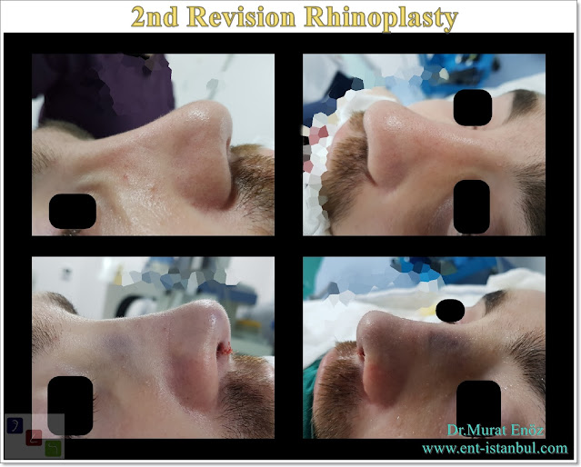 Secondary nose job istanbul, Revision rhinoplasty in men, 2nd Revision Nose Aesthetic Surgery Turkey