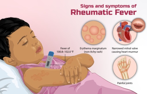 Asuhan Keperawatan Demam Reumatik dan Penyakit Jantung Reumatik - Intervensi