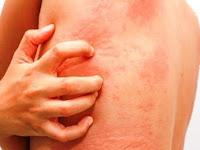 7 Tips Cara Atasi Alergi Dingin Biduran
