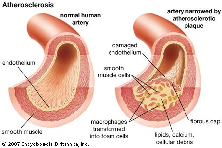 Prevention of Cardiovascular Disease ~ Medical Diagnosis and