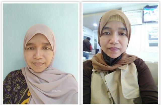 treatment-wajah-di-ella-skincare