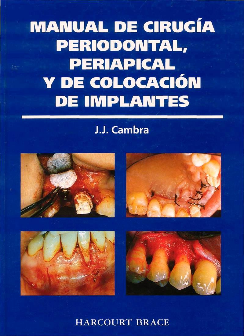 Manual de cirugía periodontal, periapical y de colocación de implantes – J. J. Cambra