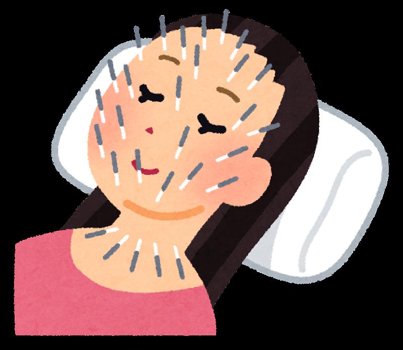 美容鍼 に対する画像結果