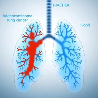lung adenocarcinoma
