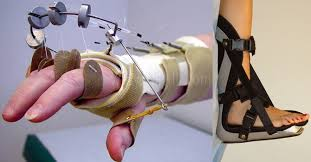 Ortopedik Protez ve Ortez ne iş yapar