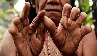 Tradisi potong jari papua