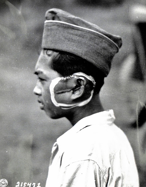 A boy who was slashed from the left cheek to the ear by the Japanese in 1945.  Image credit:  United States National Archives.