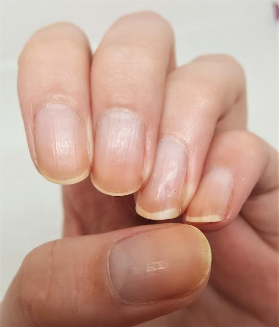 Linke Hand nach 20 Tagen