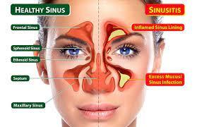 Simptom dan Punca Berlakunya Resdung